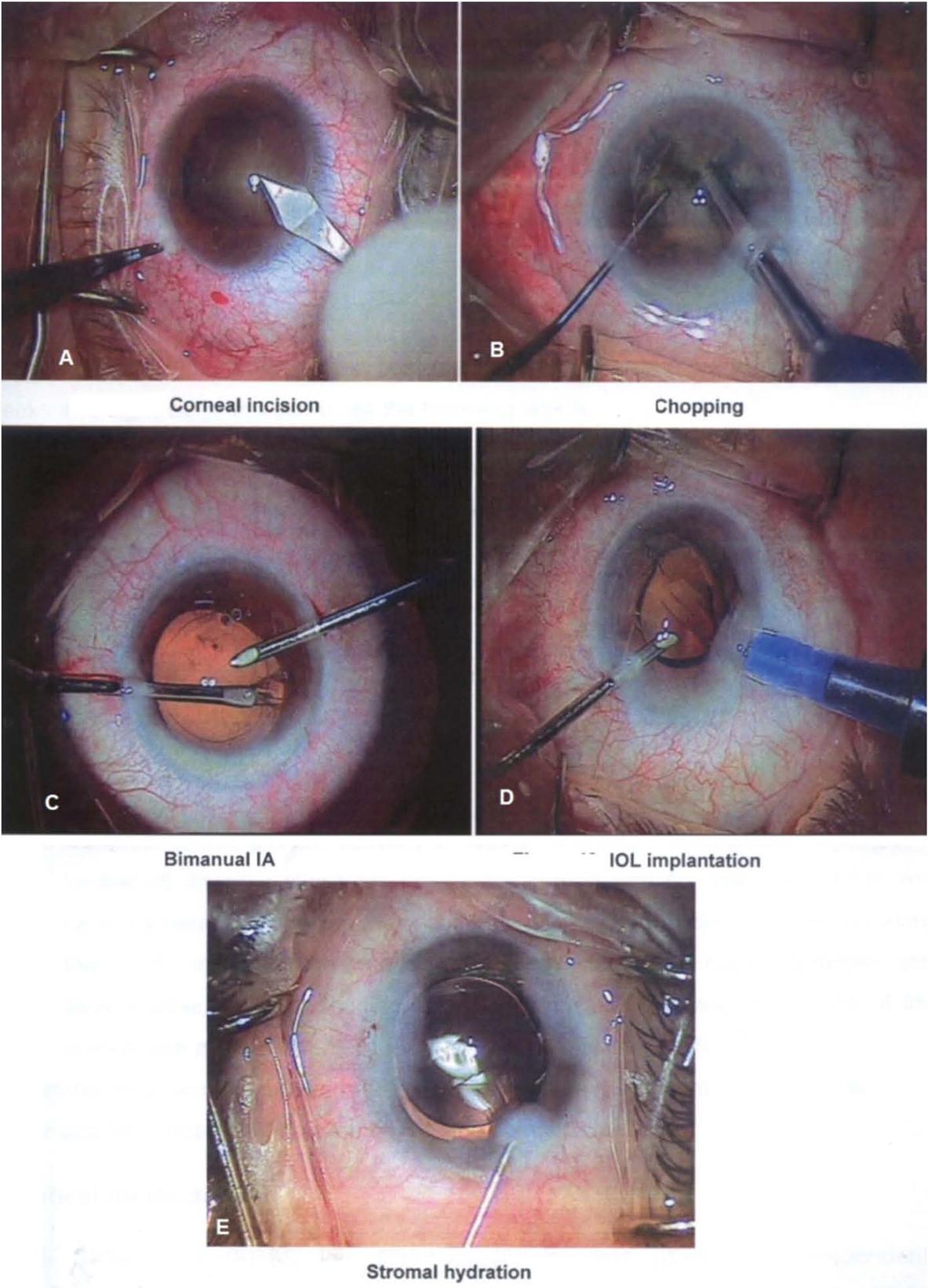 Phacoemulsification versus manual small incision cataract